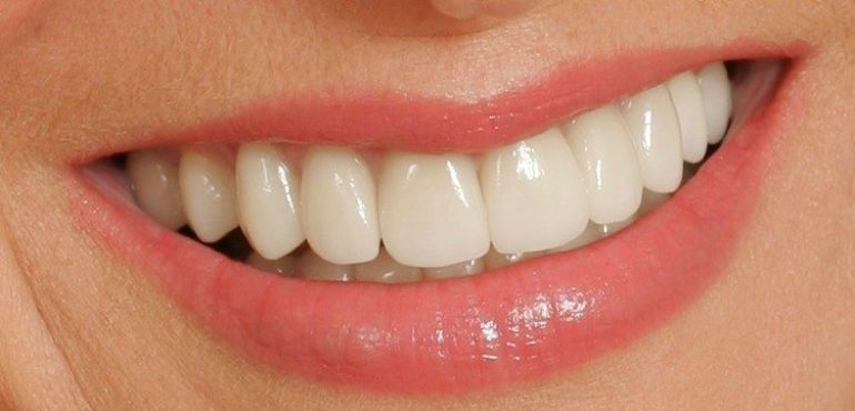 PORCELAIN VENEERS FOR A PERFECT SMILE