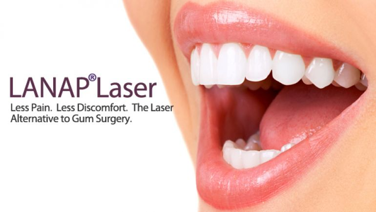 Periodontal disease treatment with Laser <br />